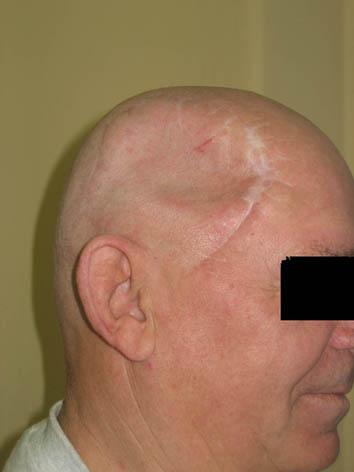 трепанация черепа последствия после операции фото
